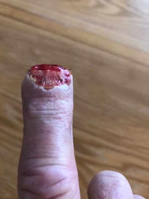 Finger Bitten by a Horse: Please Send Reiki for Healing