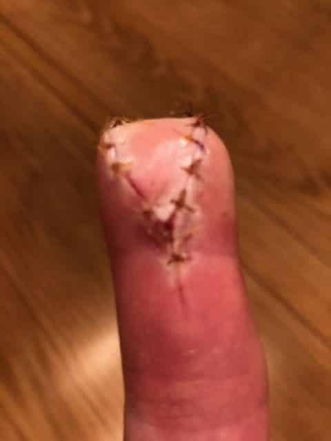 finger bitten off by a horse, distance reiki rapidly regenerates bitten finger