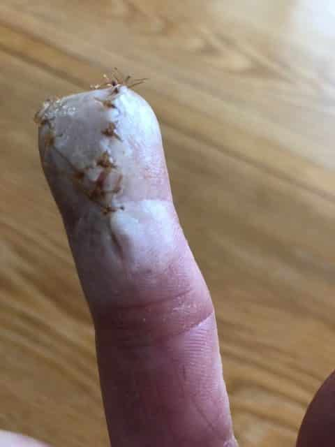 bitten finger getting white and bloodless, Finger Bitten by a Horse: Please Send Reiki for Healing