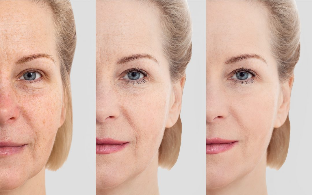 a woman's face without makeup, showing the different faces of unplugging from anti-aging